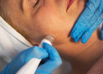 YASUMI SOSNOWIEC - oczyszczanie wodorowe aquaclean-twarz, szyja, dekolt