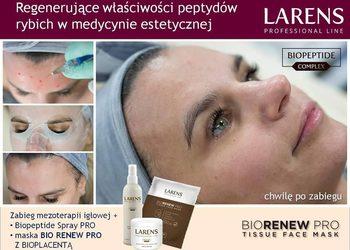 BEAUTY PREMIUM Kosmetologia Estetyczna - zabieg liftingująco-odmładzający z maską larens