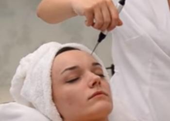 YASUMI SOSNOWIEC - krioelektroforeza twarz
