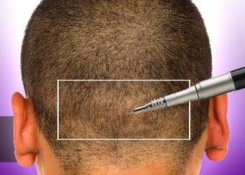 Centrum Trychologiczne PLMED - konsultacja do przeszczepu włosów , kwalifikacja do zabiegu