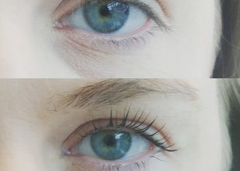 Twój Kosmetolog Aleksandra Wawro -Stalowe Magnolie Beauty Clinic Wawro&Chudzik - lifting, botoks, laminacja rzęs elleebana