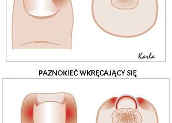 Gabinet podologiczny Sanus Pede  - korekcja wrastającego paznokcia z zaopatrzeniem