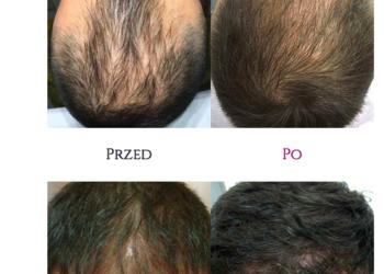 VKM Hawana Clinic - mezoterapia igłowa skóry głowy dr.cyj 1 zabieg