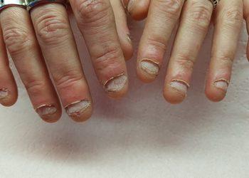 MONA Studio Urody - rekonstrukcja paznokci obgryzanych