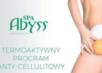 FOR YOU gabinet kosmetologii i promocji zdrowia - termoaktywny zabieg na cellulit