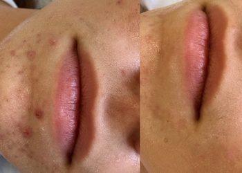 Banach Permanent Beauty - laserowa terapia przeciwtrądzikowa