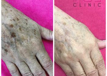 MEA CLINIC  - esthetic pen dłonie
