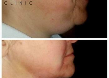 MEA CLINIC  - liposukcja podbródka