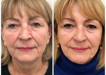 MEA CLINIC  - modelowanie twarzy -zabiegi wolumetryczne ampulka 2ml