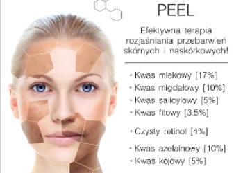 Studio Kosmetologii Looksus - skinbrite peel