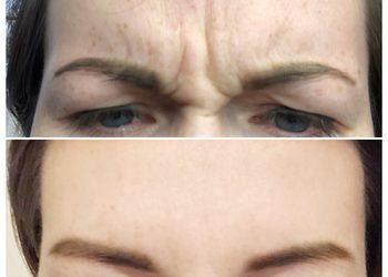 FaceTuning - oszyrykiwanie botoxem
