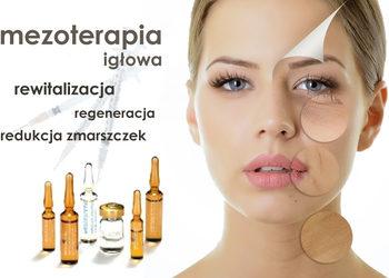 """Studio Kosmetyczne """"EVA"""" - mezoterapia igłowa"""