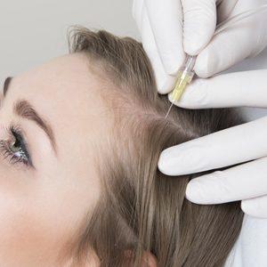 Karboksyterapia wlosy aspazja