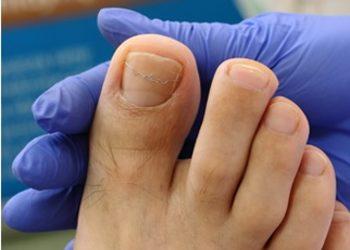 Gabinet Kosmetyki Profesjonalnej Hebe Aleksandra Tańska - korekta wrastającego paznokcia podoklamra