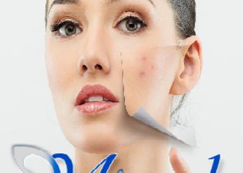 Miracle Clinic - leczenie trądziku ipl