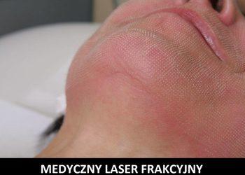 Klinika Urody Lorenzo Coletti Rumia - laser frakcyjny er:yag 2940 + nd:yag 1064  twarz + szyja (23)