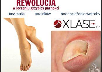 Klinika Urody Lorenzo Coletti Rumia - terapia grzybicy paznokci – 5 paznokci  (57)