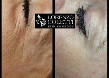 Klinika Urody Lorenzo Coletti Rumia - coaxmed frakcyjna radiofrekwencja - pogrubienie skóry w okolicy oka, likwidacja obrzęków oraz minimalizacja zmarszczek w okolicy oka (147)