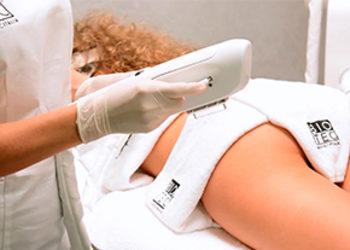 Klinika Urody Lorenzo Coletti - nieablacyjny resurfacing skóry – twarz + szyja (termolifting + fotoodmładzanie)  (84)