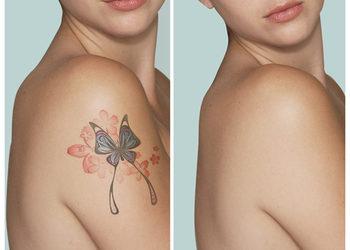 SKIN PERFECT Gabinet Nowoczesnej Kosmetyki - usuwanie tatuażu/makijażu permanentnego pow. 10cm kw. (jeden zabieg)