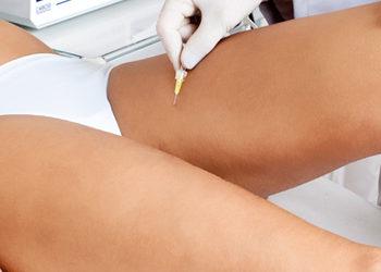 sephia-spa.pl rezerwuj on-line - karboksyterapia - odchudzanie, redukcja cellulitu
