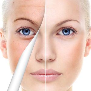 Shutterstock kobieta.pl pharmaceris x