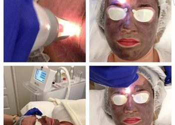 Klinika Urody Lorenzo Coletti Rumia - peeling węglowy laserem qswitch nd:yag 1064 nm (na zawiesinie węglowej) twarz + szyja + dekolt  (238)