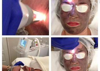 Klinika Urody Lorenzo Coletti - peeling węglowy laserem qswitch nd:yag 1064 nm (na zawiesinie węglowej) twarz  (276)