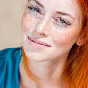Kosmetologia ESTETI-MED - Redukcja rumienia na policzkach