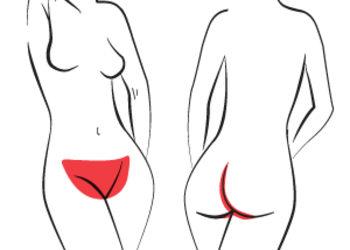 Laser DeLux / Łódź - depilacja laserowa / bikini całkowite