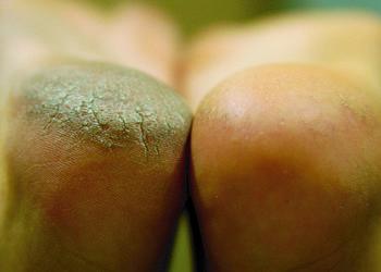Callus peel pedicure kwasowy salon medi spa cypryjska