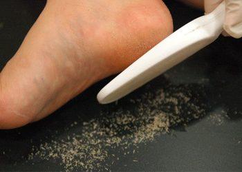 Callus peel pedicure kwasowy salon medi spa cypryjska stegny