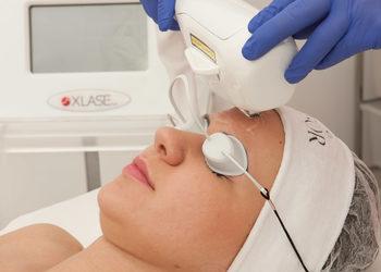 sephia-spa.pl rezerwuj on-line - przebarwienia - laser nd yag+medyczny cpl - czoło