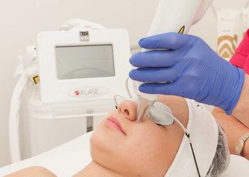 sephia-spa.pl rezerwuj on-line - przebarwienia - laser nd yag+medyczny cpl - okolice ust