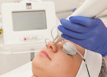 sephia-spa.pl rezerwuj on-line - przebarwienia - laser nd yag+medyczny cpl - policzki