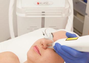 sephia-spa.pl rezerwuj on-line - przebarwienia - laser nd yag+medyczny cpl - żuchwa