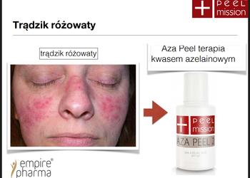 Calle Kosmetologia Olivia Kaas - aza peel dla cery trądzikowej wrażliwej