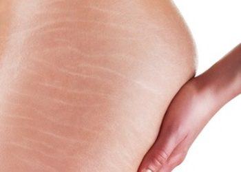 Di Origine Kosmetologia Estetyczna i Trychologia - rozstępy - mezoterapia igłowa