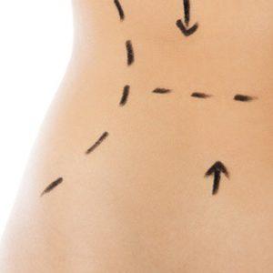 Di Origine Kosmetologia Estetyczna i Trychologia - Lipoliza - Miejscowe usuwanie tkanki tłuszczowej