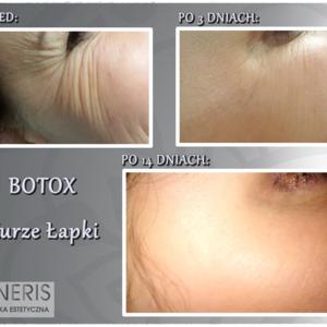 Botox_kurze_apki
