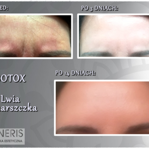 Botox_lwia