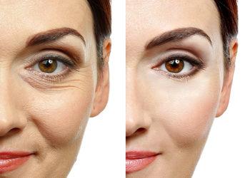 Di Origine Kosmetologia Estetyczna i Trychologia - revitalizacja skóry - mezoterapia igłowa