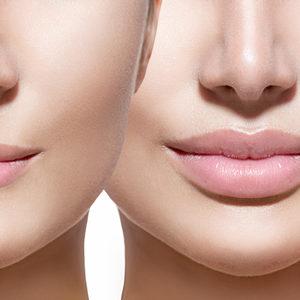 Di Origine Kosmetologia Estetyczna i Trychologia - Wypełniacze – usieciowany kwas hialuronowy