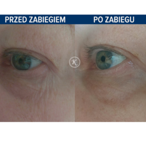 GABINET KOSMETOLOGICZNY KAMILJA - Infuzja tlenowa okolic oczu