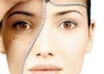 Salon Kosmetyczny Sekrety Urody - eksfoliacja kwas migdałowy 50%