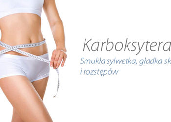 Karboksyterapia 2