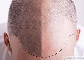 Studio Kosmetyczne Orchidea - 060. mikropigmentacja skóry głowy
