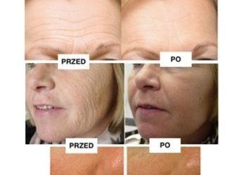 LILU HAIR&SPA - mesoboost therapy elastin &collagen - wiotkość skóry