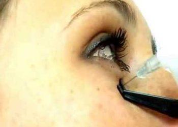 Karno oko