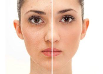 STUDIO MAESTRIA RADOM - oczyszczanie twarzy manualne
